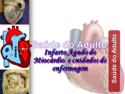 Curso Online de CUIDADOS DE ENFERMAGEM NO INFARTO AGUDO DO MIOCÁRDIO - SAÚDE DO ADULTO