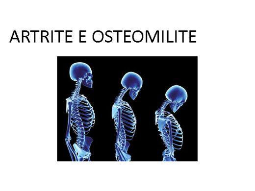 Curso Online de ARTRITE E OSTEOMILITE